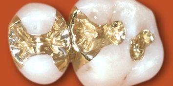 Inlays und Veneers   Unterberger Dental
